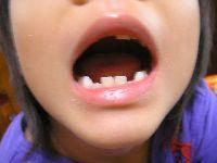 """""""死ぬほど痛い歯医者""""はなぜ減ったのか"""