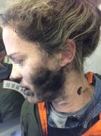旅客機内で乗客のヘッドフォンが突如爆発……原因は内蔵バッテリー、豪運輸安全局が注意喚起