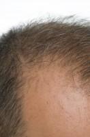 中国人男性の4人に1人が薄毛、脱毛面積は北京の4分の1に相当―中国メディア