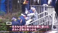 東京・碑文谷公園の女性遺体、右太ももから骨折治療のボルト
