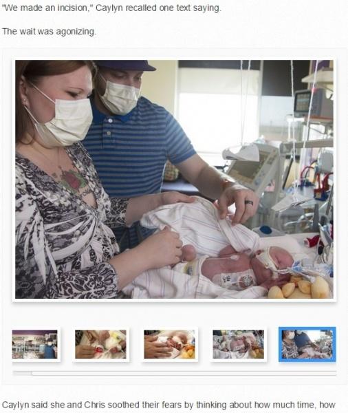生後6日の赤ちゃん、心臓に欠陥が見つかり移植手術を受ける。(米)