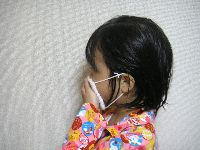 子どもの病気、大人にうつると重くなるのはなぜ?