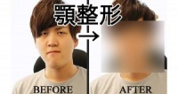 しゃくれ男子が顎を整形すると顔は改善されるのか