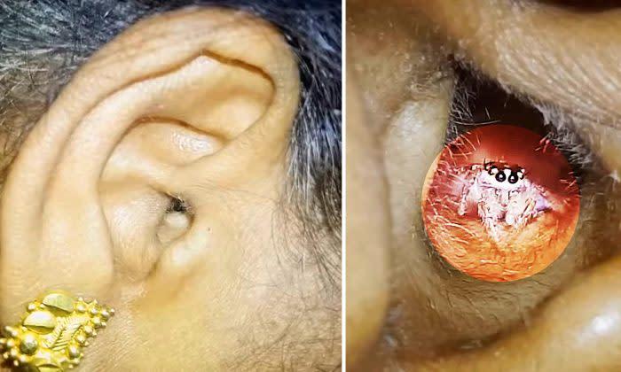 耳 が 痛い 原因