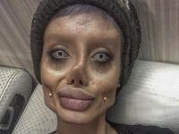 19歳女性、アンジェリーナ・ジョリーに憧れて50回以上の整形手術を行う