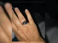 火災で全てを失った夫婦、奇跡的に結婚指輪を発見した時の夫の行動に涙