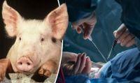 ブタからヒトへの臓器移植がまもなく実現。2年以内に移植可能に。