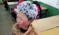 頭は凍り付き、手はあかぎれだらけ。極寒の中往復9キロの道のりを薄着で通学する中国の小学生