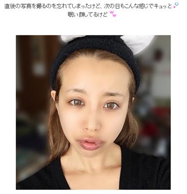 窪塚洋介を略奪したPINKYの腫れあがった唇が強烈すぎる!! , エキサイトニュース(2/2)
