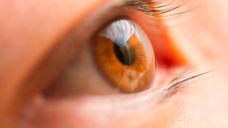 ピン ホール 瞳孔
