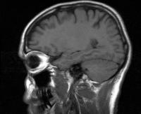 性的映像、脳にダメージ与え「ポル脳」に 脳が収縮し中毒化、ゾンビ状態へ