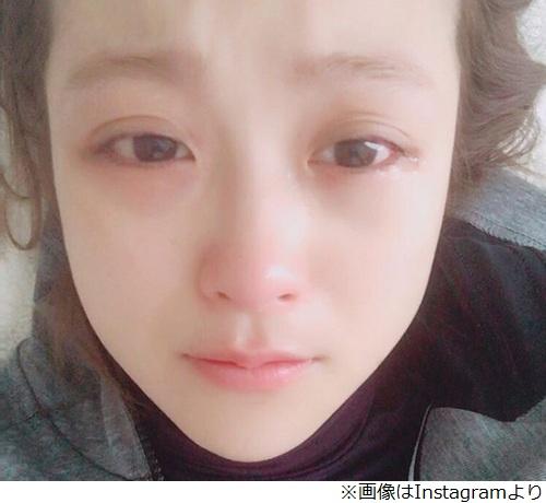 泣くと目が腫れる理由