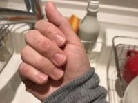 水で薄めて使う?食器用洗剤の手荒れ対策が話題