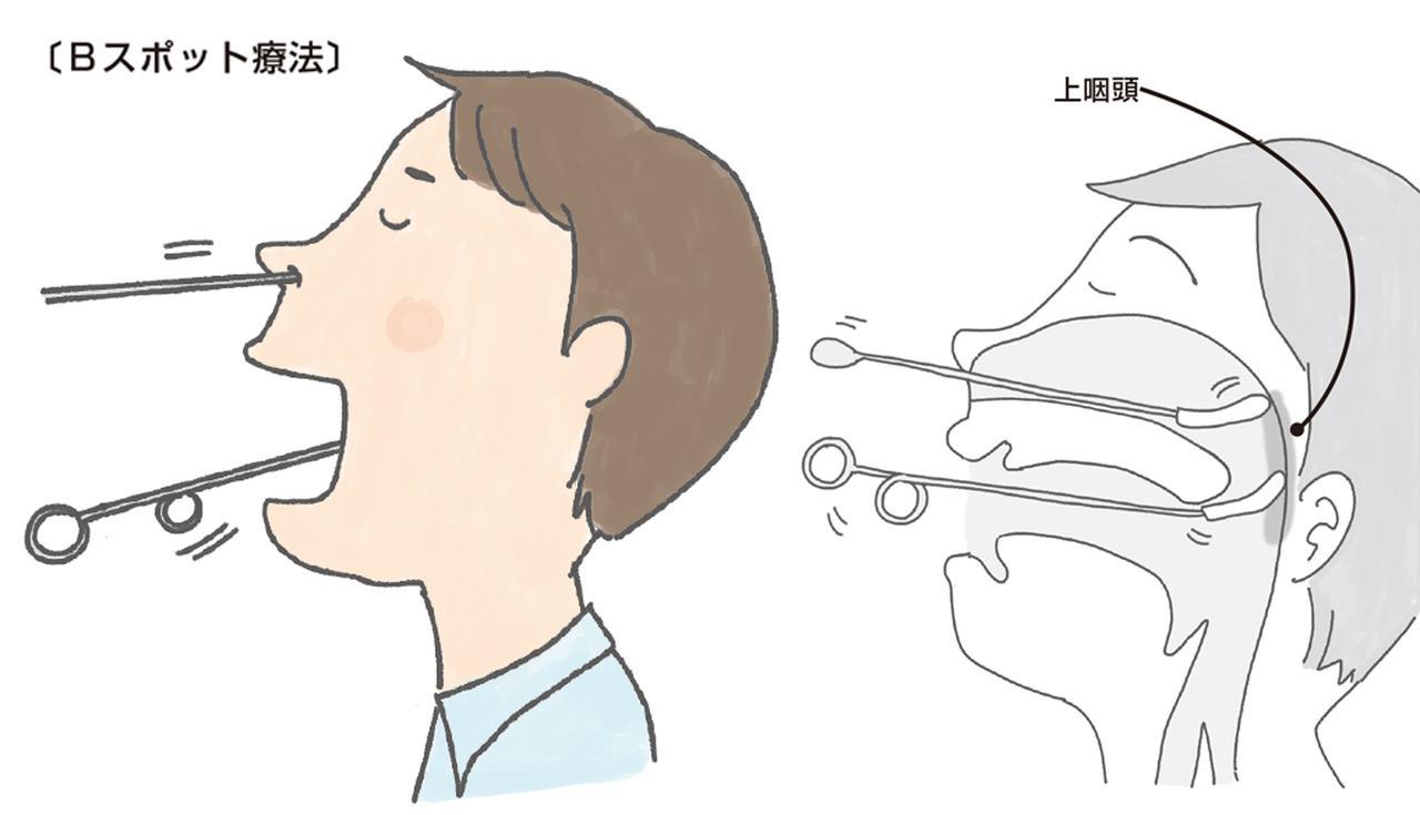 ツボ 上 咽頭 炎