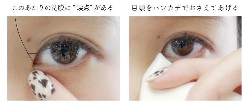 治す 目 の 腫れ