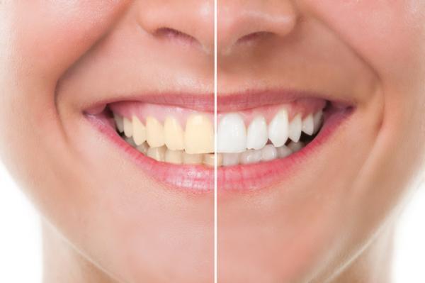 """自信持って""""笑える""""?「白い歯」に見せる!メイクテクニック4つ"""