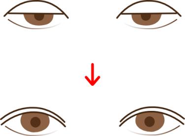 眼瞼下垂(がんけんかすい)の手術(挙筋前転術など)の術前・術後イメー