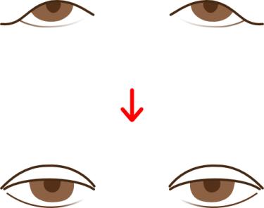 上眼瞼形成術の術前・術後のイメージ
