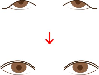 眉下切開の術前・術後イメージ