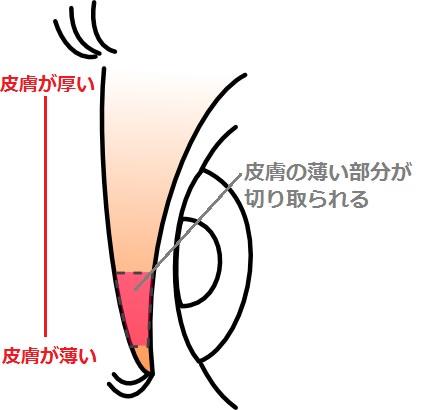 まぶたの皮膚の構造