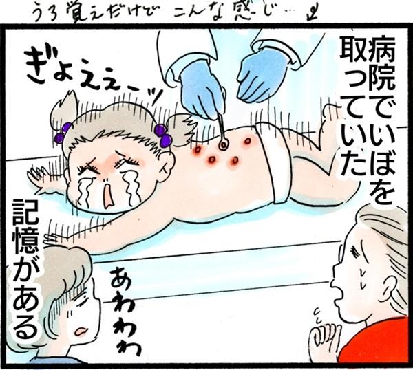 水いぼは大人にもうつるの? 病院に行ったら…【荻並トシコのどーでもいいけど共感されたい! 第3話】