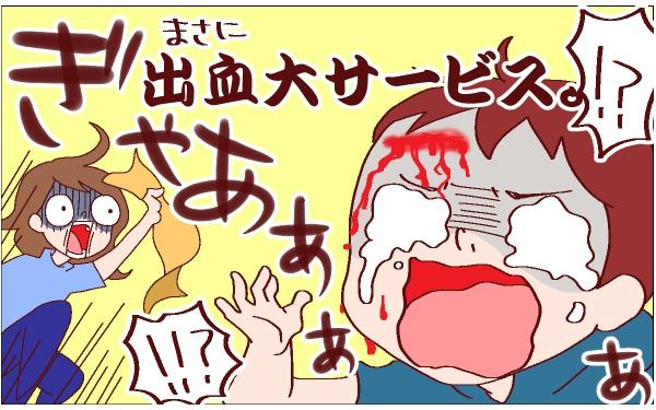 目が離せない2歳男児、家の中でおでこを切る大怪我! ~息子のケガ(1) ~