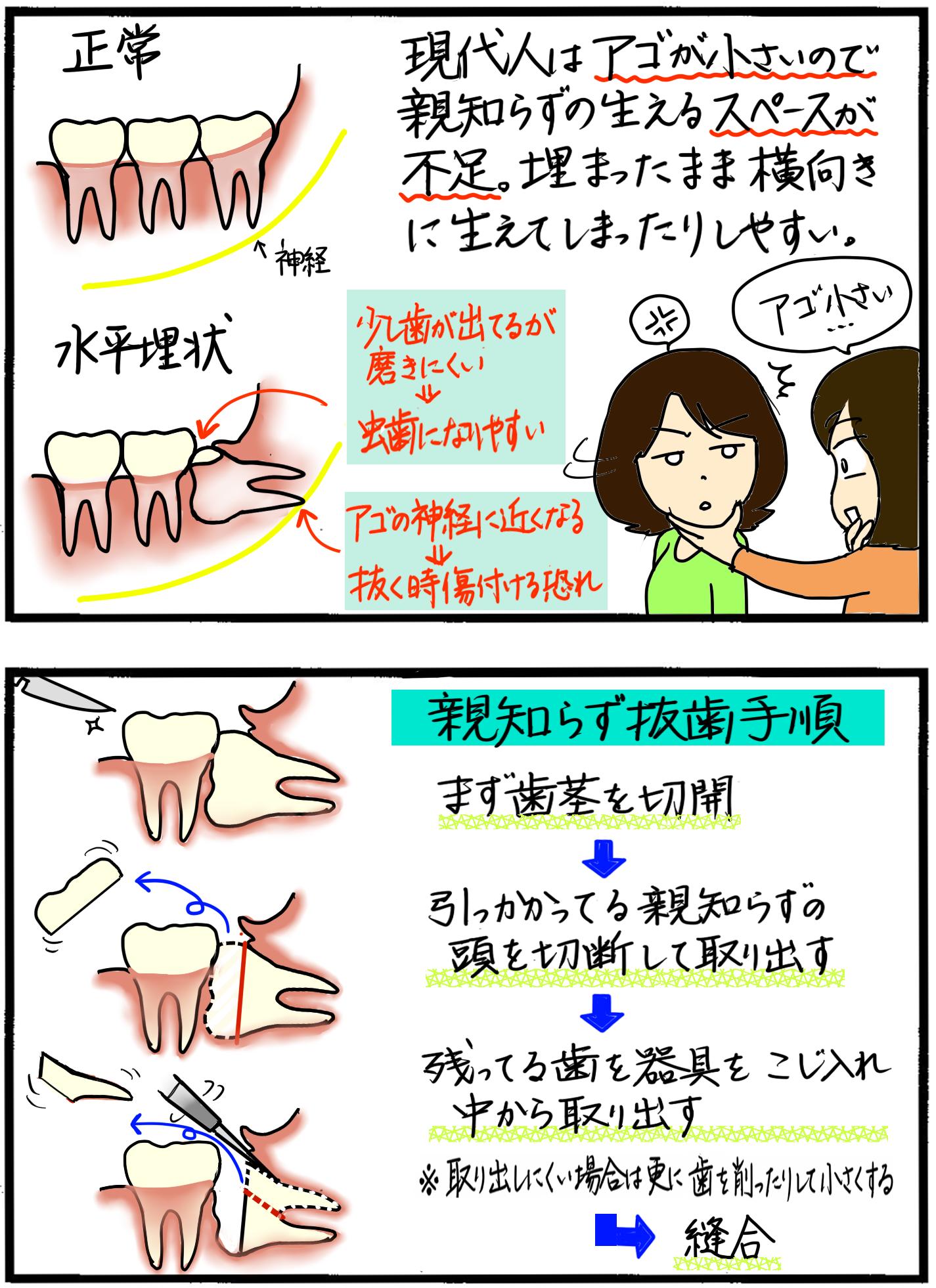 親知らず 抜歯 金額 親知らず抜歯の費用:1本8000円~。保険適用の条件と抜歯の流れ