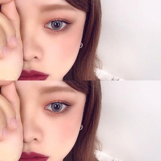 目 を 大きく する 手術